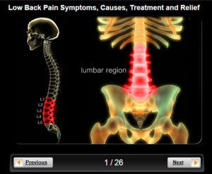 top 10 low back pain related articles ankylosing spondylitis back