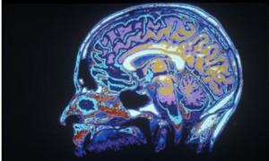 MRI-008.jpg