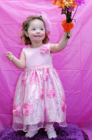 Famous People With Turner Syndrome Turner syndromebut they