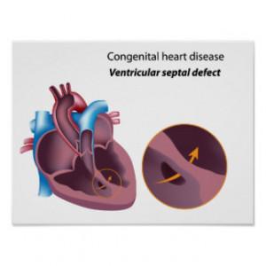 Heart Diagram Shirts Gifts