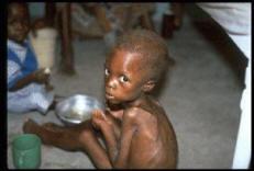 Cliniquement, la malnutrition est caractérisée par une prise ...