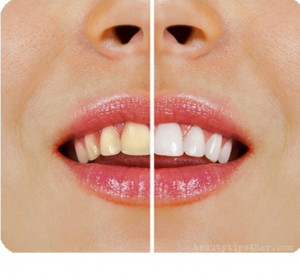 What you will need to whiten your teeth :