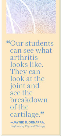 Our students can see what arthritis looks like. They can look at the ...