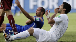 PHOTO: Uruguays Luis Suarez holds his teeth after running into Italys ...