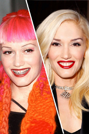 Celebrities Who Amazingly Improved Their Teeth