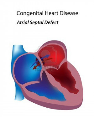 Related Pictures causes of heart disease