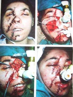 Muslims Kidnap Little Christian Girl And Horrifically Slice Her Face ...