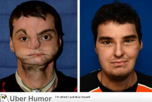 ... in a shotgun accident, before and after a face transplant surgery
