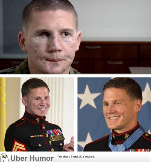 ... Kyle Carpenter before and after facial reconstruction surgery