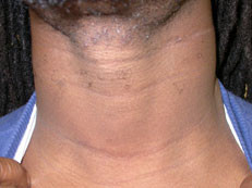 After Thyroid Surgery Scars