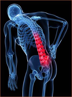Rugpijn kan ontstaan bij een o.a. hernia , spondylodese, slijtage van ...