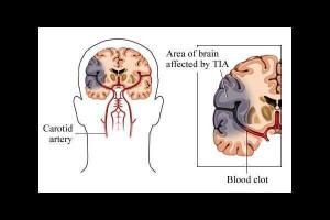 Transient ischemic attack Picture Slideshow