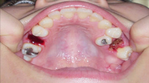 Home Dental Clear Braces Before And After