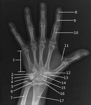 Matching exercise x-ray
