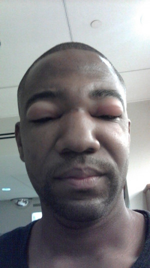 Funny Bee Sting Stung 09 Show Me Your Bee Sting (25 Pics)