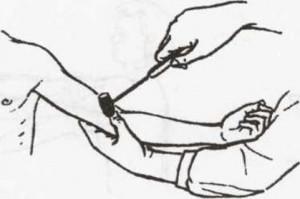 Triceps Reflex