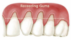The symptoms of gingivitis recession are: