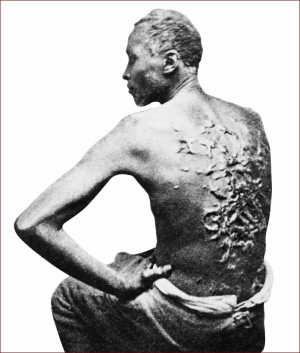 Does the Bible support slavery? Skeptics of the Bible often claim that ...