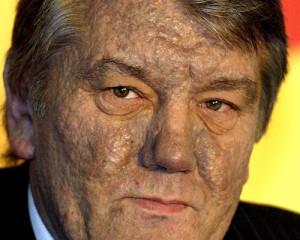Back > Gallery For > Chloracne Viktor Yushchenko