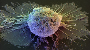 New Rules Expand Federal Funding of Stem Cells