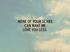None of your scars can make me love you less.