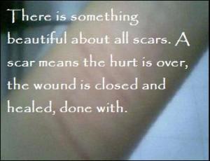Beautiful Scars by Jessie-0810