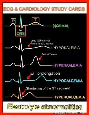 Electrolytes and EKG