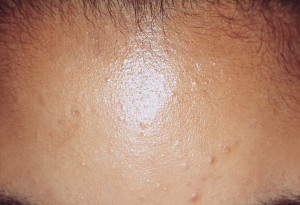Flat Warts On Face Treatment