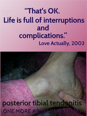swollen-ankle-interruption-quote