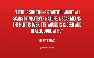 Quote About Scars Are Beautiful