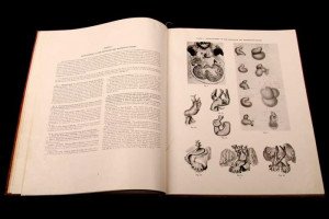 Atlas of Congenital Cardiac Disease, by Dr. Maude E. Abbott - 1936 ...