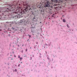 Verruca Vulgaris Eyelid Verucca vulgaris (wart)