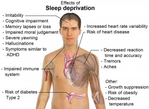 Effects of sleep deprivation (from Wikimedia Commons )