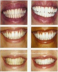 Teeth_Whitening_Gel_Carbamide_Peroxide_35_.jpg