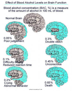 Teen Alcohol Effects On Brain