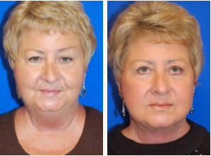 Before and After Face lift in Mobile AL
