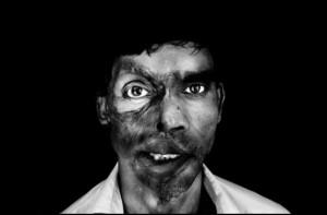 male acid attack victim538