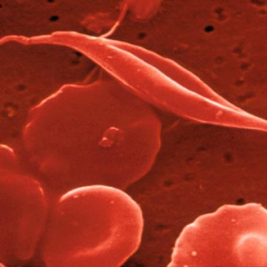 Sickle_cell_anemia Picture Slideshow