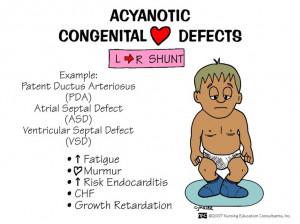 Congenital Heart Defects: Acyanont Congenital, Congenital Heart ...