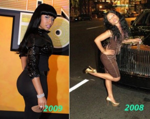 Nicki Minaj: Plastic Surgeries, Before and Afters