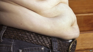 "Obesity is the ""single greatest"" threat to health, say the doctors"