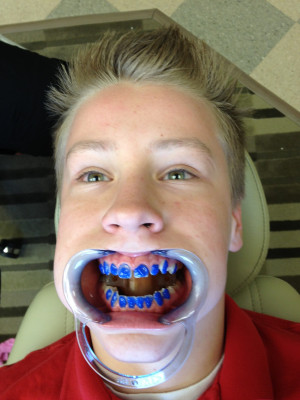 Alex got his braces! Just what he wanted for Christmas.