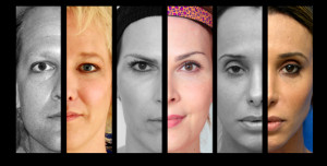 Facial Feminization Surgery Before And After