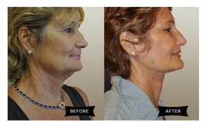 face and neck lift before and after set 2