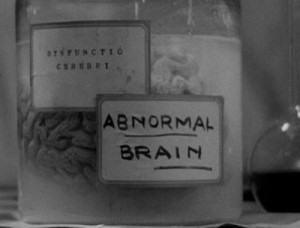 The Normal Brain and the Abnormal Brain in Frankenstein (1931) (film ...