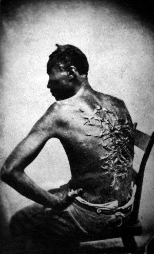 former slave named Gordon shows his whipping scars. Baton Rouge ...