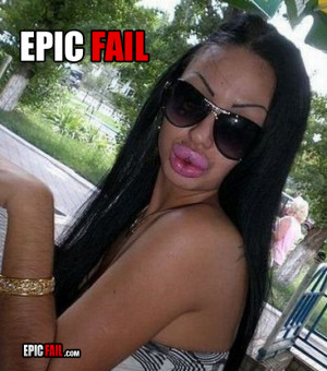 ... epic-beautification-fail-big-lips-hairy-arms-eyebrows_13140111804.jpg