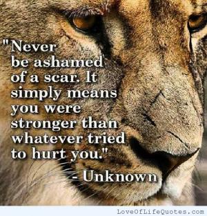 Never-be-ashamed-of-a-scar.jpg