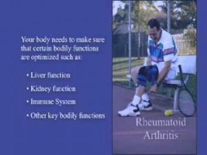 Exercises For Rheumatoid Arthritis Of The Hands Treatment Elderly Dogs ...