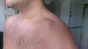 Broken Collar Bone Recovery Time